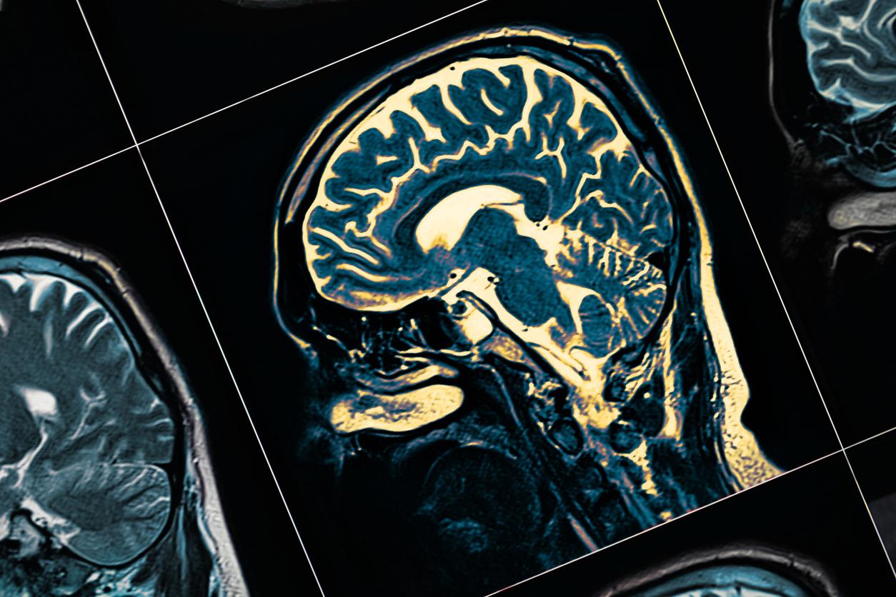 O que é Rebaixamento Cognitivo e como isso pode afetar uma pessoa